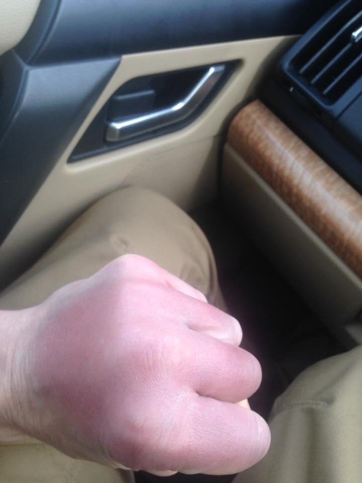 boxer_tony_moran_swollen_bruised_fists_world_title_fight_win_24_4_2016-1.jpg - 41.32 kB