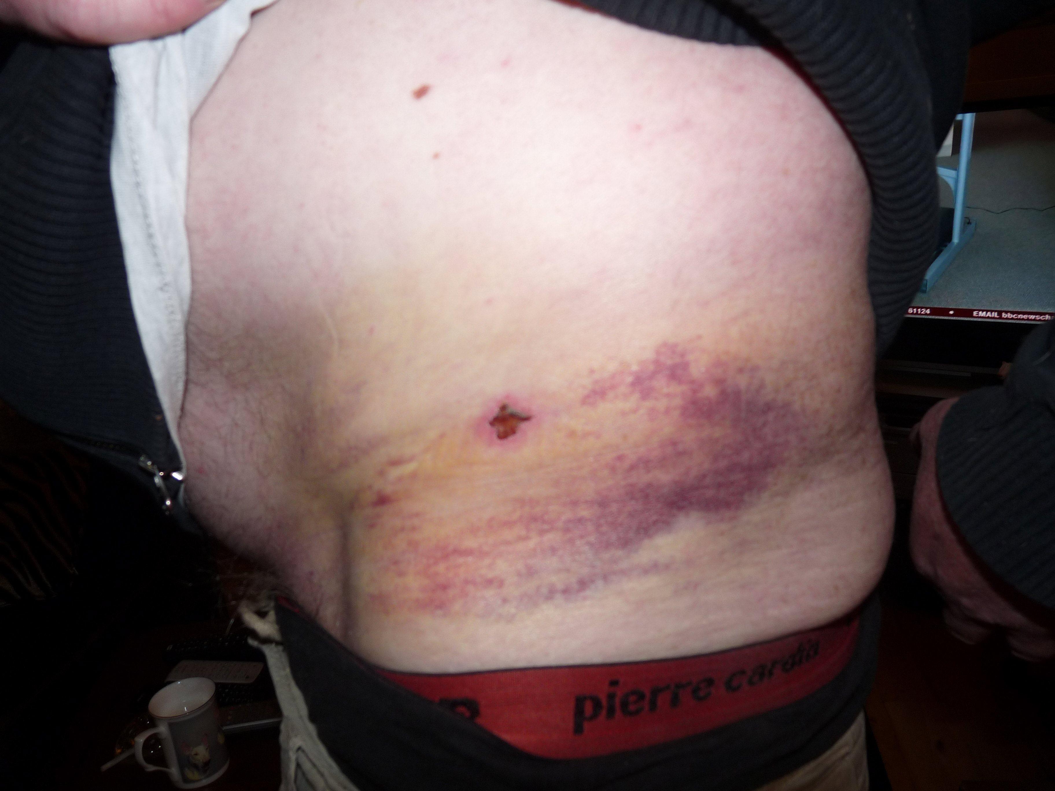 bruising_recovery_28_03_13_1_ibt.jpg