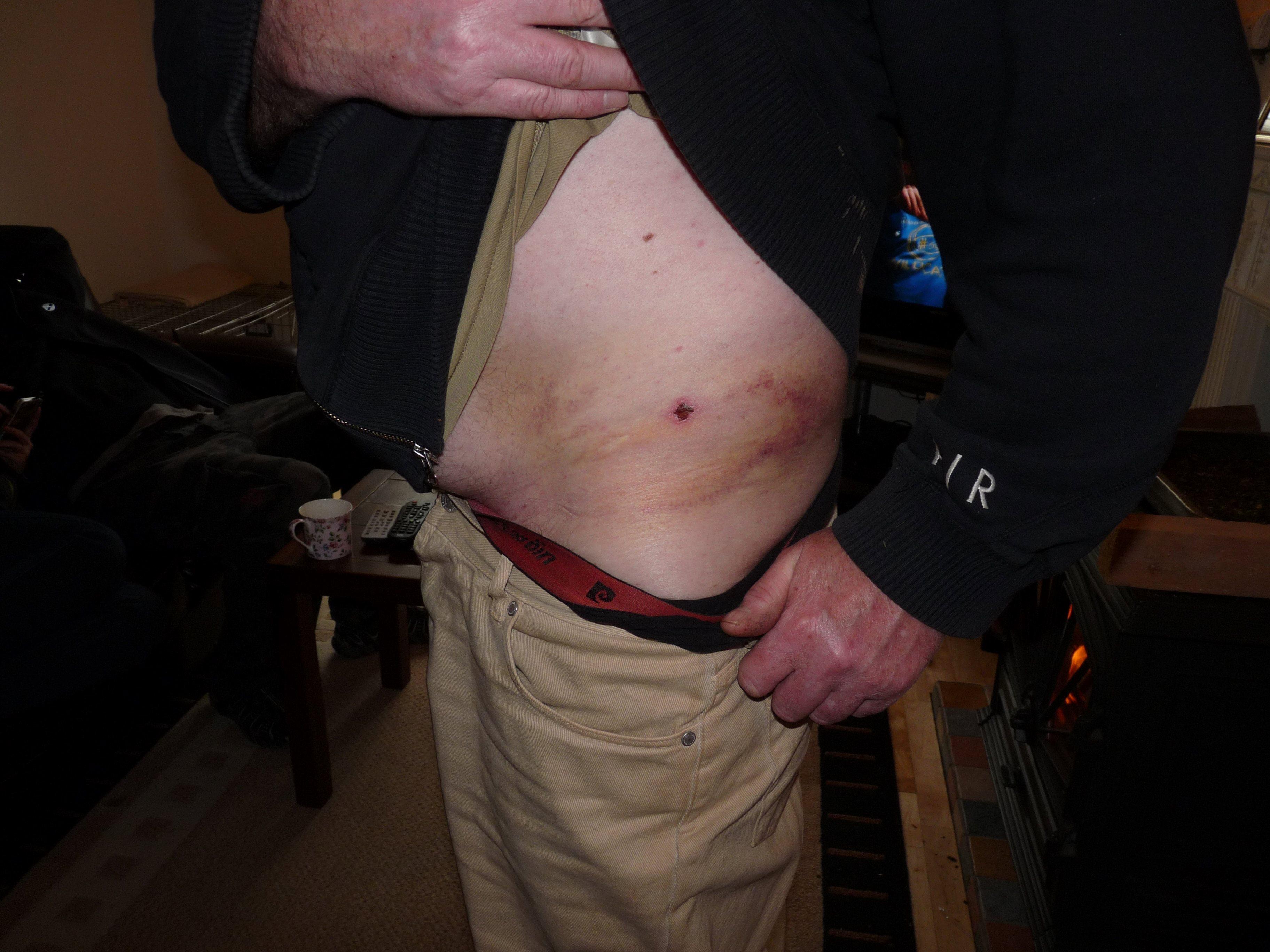 bruising_recovery_ibt_30_03_13.jpg