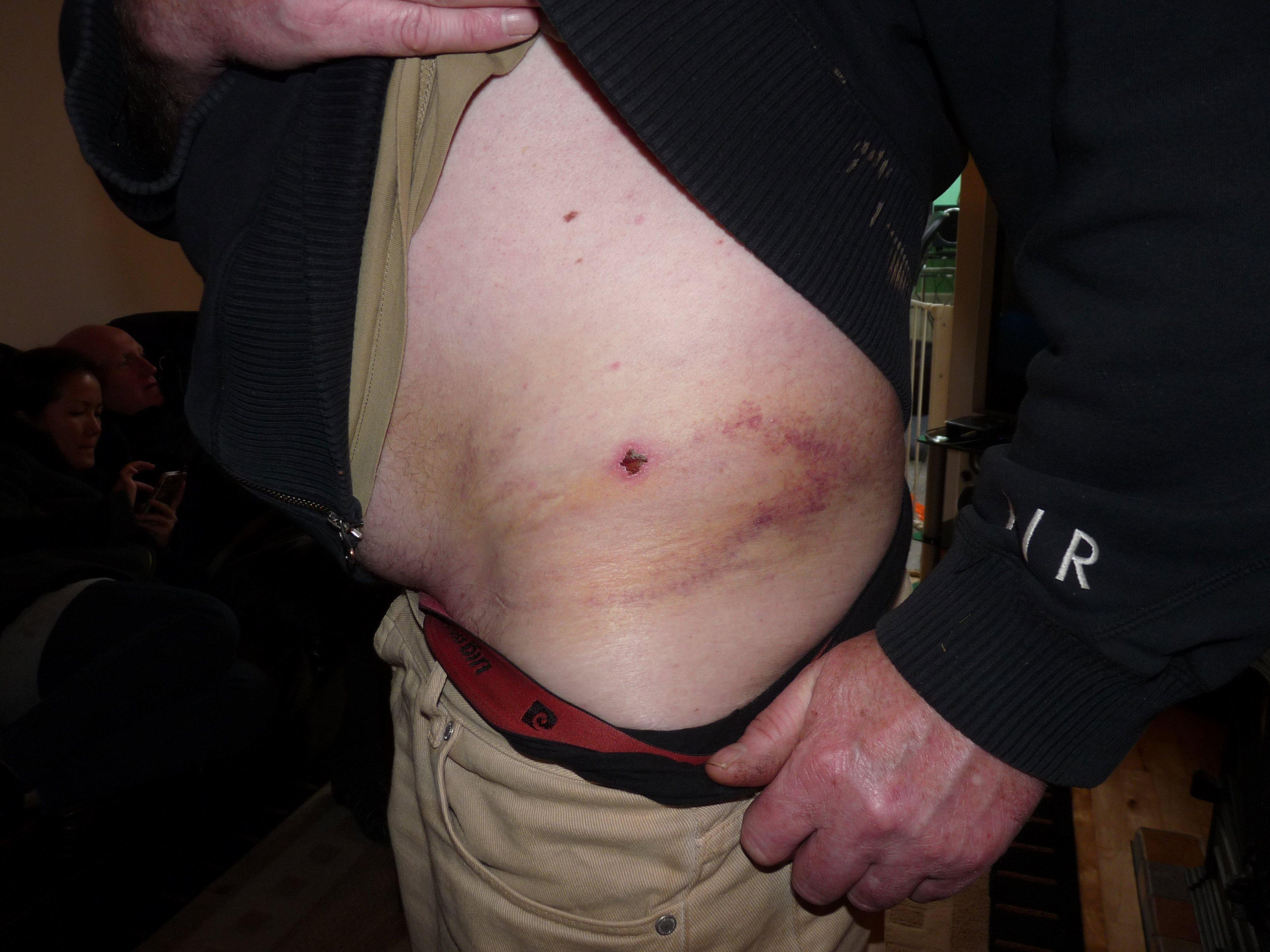 bruising_recovery_ibt_30_03_13_1.jpg