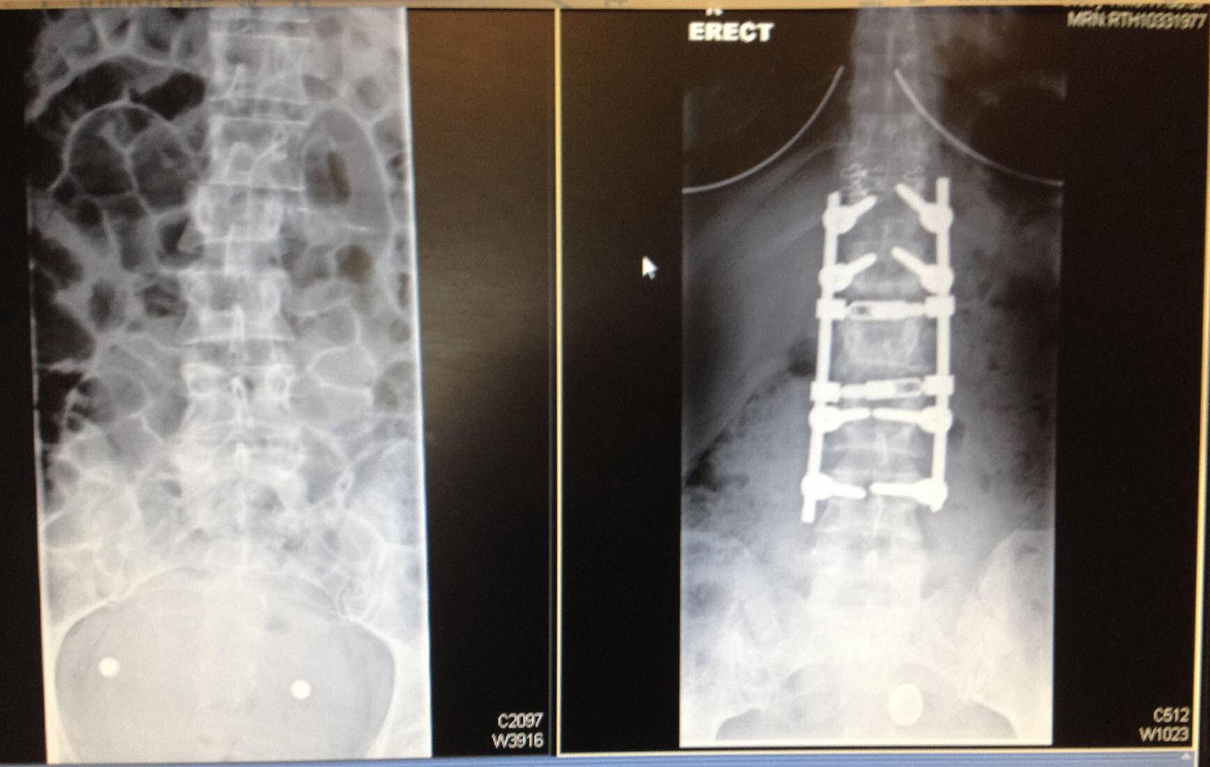 sharon_fractured_spine_xray_ibt_1.jpg - 198.99 kB