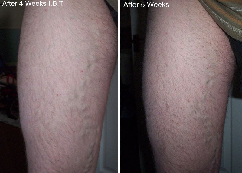 4 5 weeks Inclined Bed Therapy  varicose veins ibt