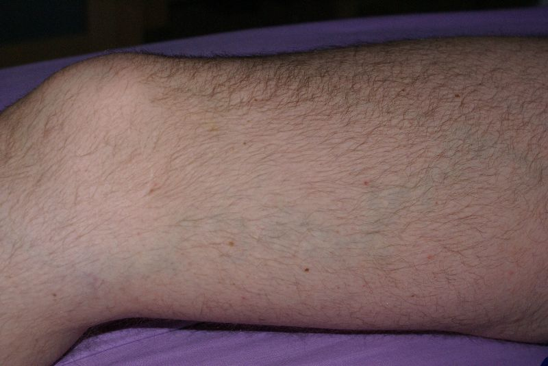 varicose veins shown while on Inclined Bed Morning IBT